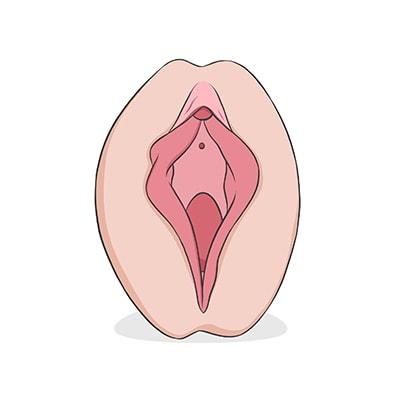 Vulva tipo herradura