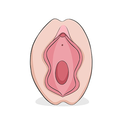 Vulva tipo mariposa