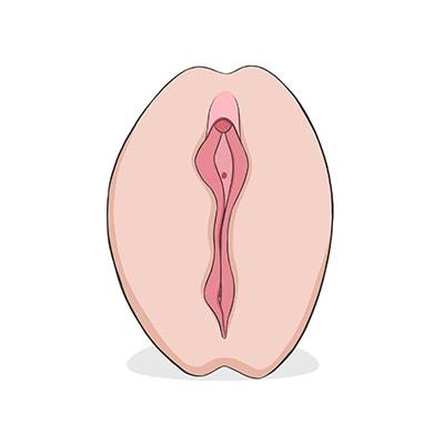 Vulva tipo tulipan