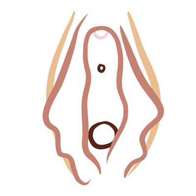 Vulva tipo flamenca