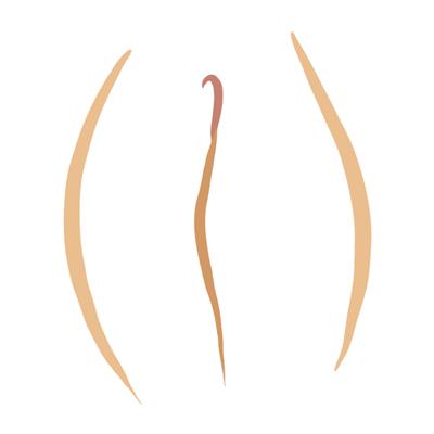 Vulva tipo buñuelo
