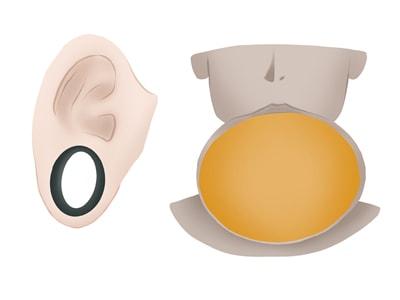 Dilatación de zonas del cuerpo